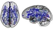 تفاوت مغز زنها و مردها تایید شد
